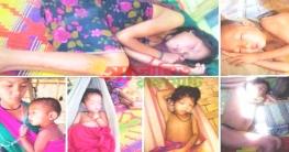 বান্দরবানে অজ্ঞাত রোগে এক শিশুর মৃত্যু, আক্রান্ত আরো ৭০ জন